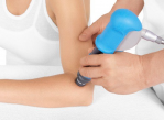 Shockwave Therapy Cardiff Physiotherapy clinic