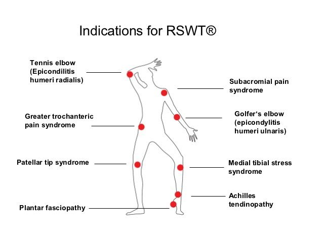 Body Parts for Shockwave Therapy